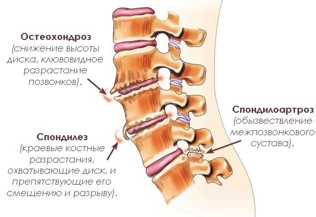 Таблица причин и последствий дегенеративно-дистрофических изменений позвонков шеи..
