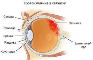 Кровоизлияние в глаз: причины и лечение патологии