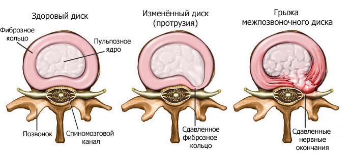 Операция по удалению грыжи позвоночника эндоскопом 8 последствий