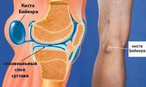 Факторы влияющие на возникновение кисты в колене