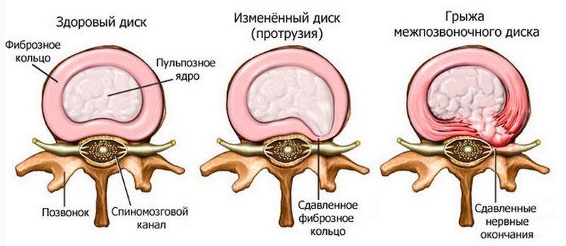 3 комплекса Лфк и упражнений при протрузиях позвоночника
