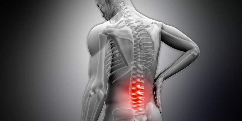 Остеосклероз позвоночника 3 вида заболевание и причины возникновения