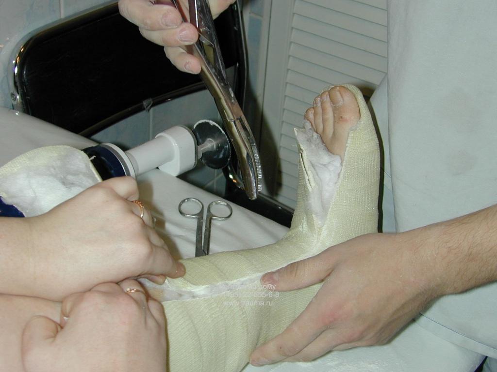 Перелом лодыжки сколько заживает и быстрее восстановится