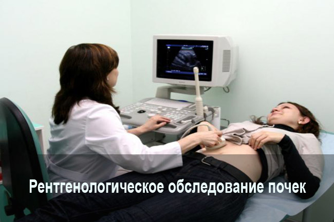 Рентгенологическое обследование почек