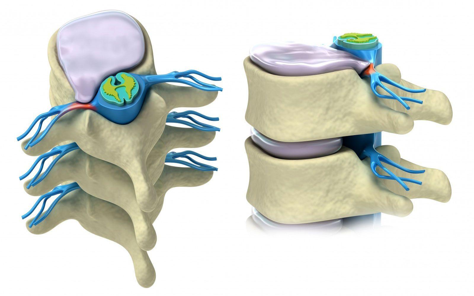 3 стадии формирования циркулярной протрузии позвонков