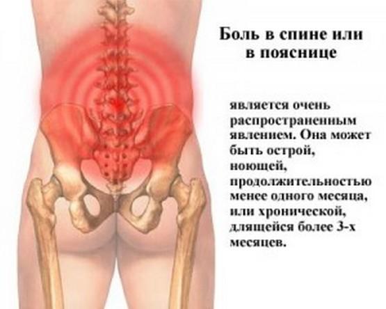 Из чего болит спина ниже поясницы и отдаёт в таз?