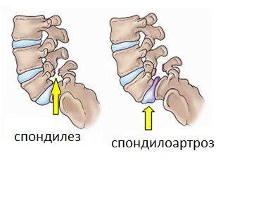 24 позвонка человека анатомии и функции (таблица)