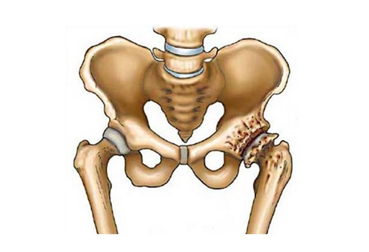 7 симптомов коксартроза тазобедренного сустава 2 степени. Лечение без операции