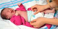 Баланопостит у младенца
