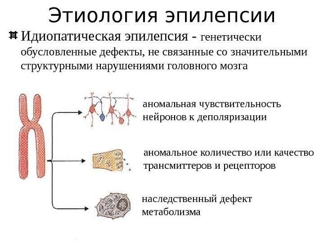 Этиология эпилепсии