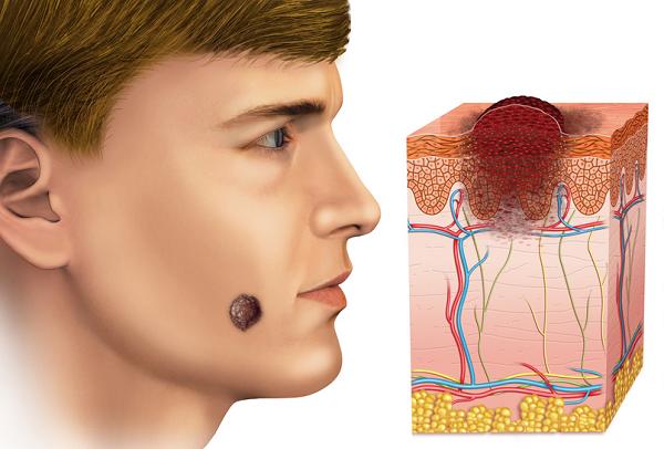 Атеромная опухоль