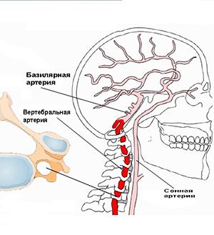 16 признаков (ВБН) Вертебробазилярной недостаточности при шейном остеохондрозе