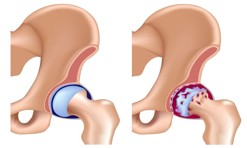 Как выбрать хондропротекторы при артрозе и коксартрозе тазобедренного сустава?