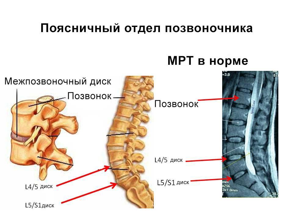 3 противопоказания МРТ поясничного отдела и как к нему подготовиться?