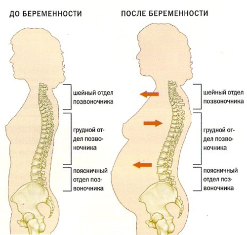 Чем лечить шейный остеохондроз при беременности и другие его виды?
