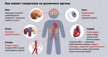 Симптомы эссенциальной гипертензии, что означает болезнь и каковы ее причины?