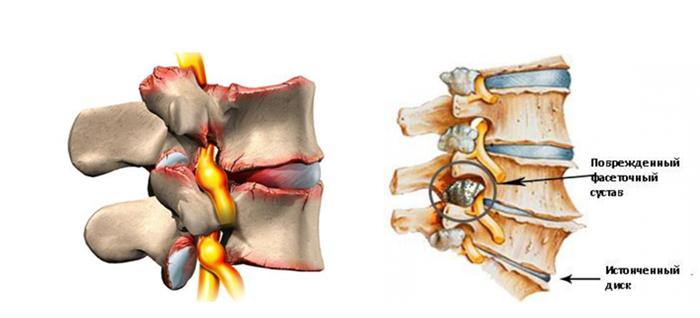 Артроз дугоотростчатых суставов 5 причин и симптомы
