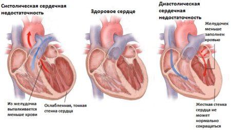 Инструкция по применению «Вазотенза» и его особенности перед другими препаратами