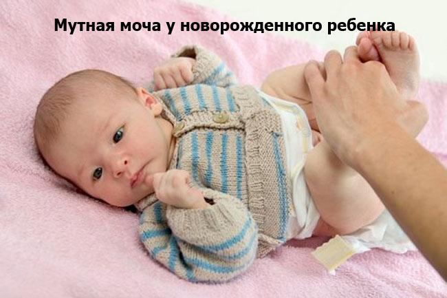 Мутная моча у новорожденного ребенка