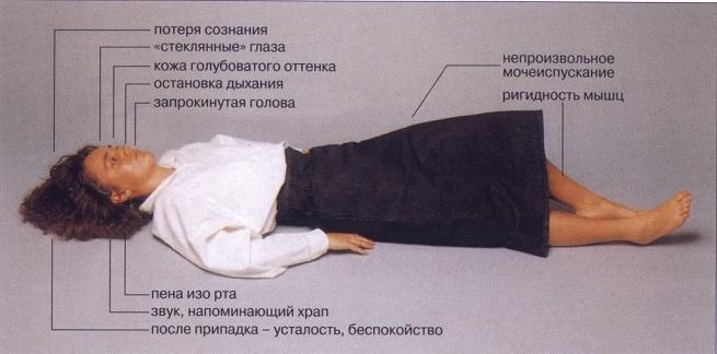 признаки недуга