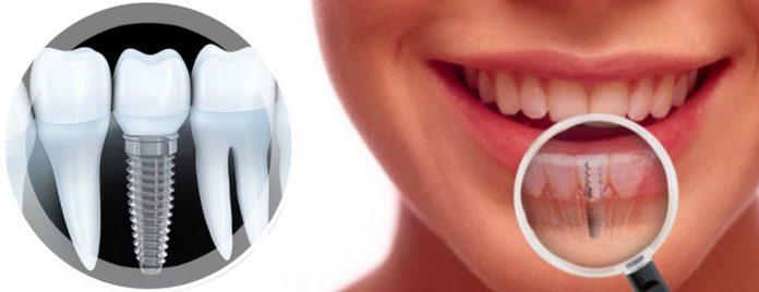 Протезирование зубов с применением имплантации