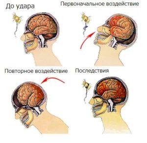 Что происходит в мозге