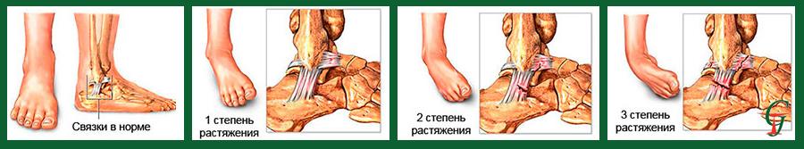 Первая помощь при растяжении лодыжки, как правильно лечить?