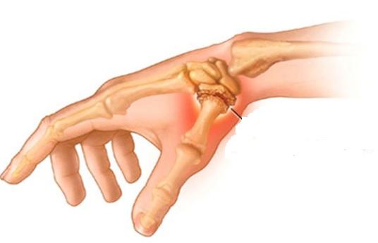 Почему болит сустав больших пальцев рук? 7 причин