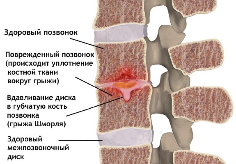 Мелкие множественные грыжи Шморля грудного отдела позвоночника