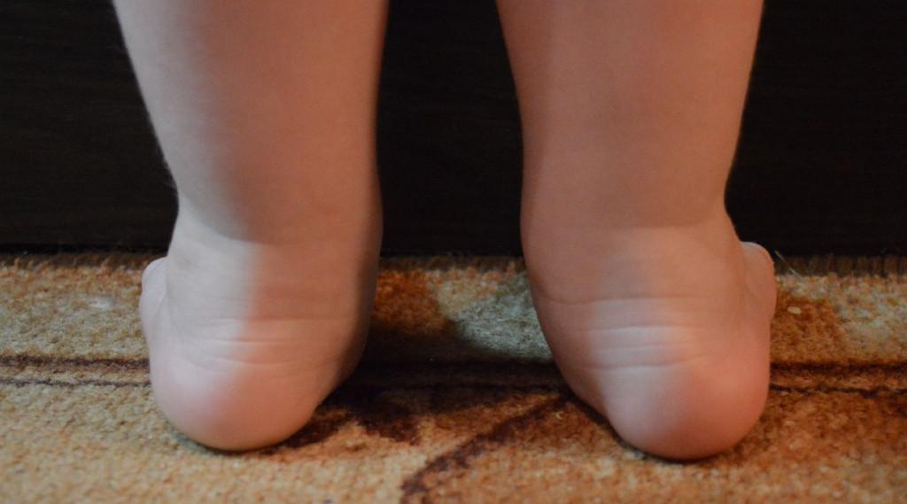 Плосковальгусные стопы у детей 4 стадии развития