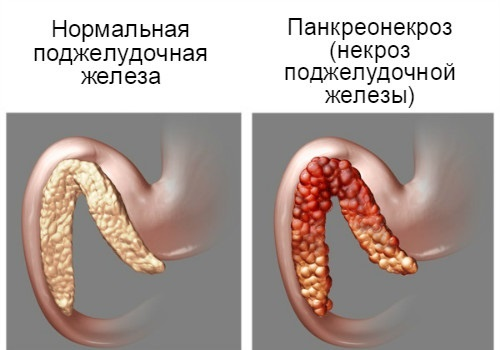 Панкреонекроз осложнение
