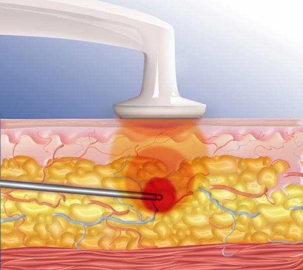 Воздействие лазера на жировые клетки