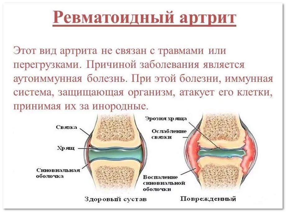 Артрит шейного отдела позвоночника, а также ревматоидный артрит симптомы
