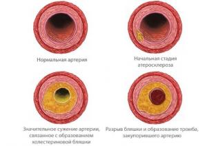 Как избавиться от бляшек в сосудах шейного отдела