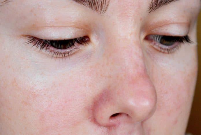 Эти методы помогут избавиться от купероза на носу