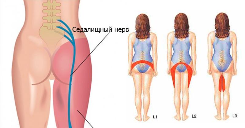 Как лечить защемление нерва в тазобедренном суставе. 21 симптом
