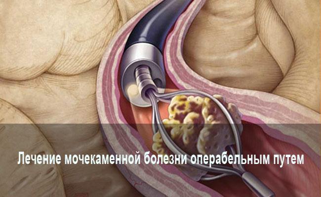 Лечение нефролитиаза операбельным путем