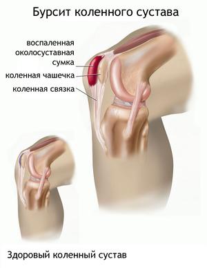 Заболевание коленного сустава бурсит
