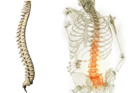 6 рецептов для лечение остеохондроза народными средствами + лечебная гимнастика