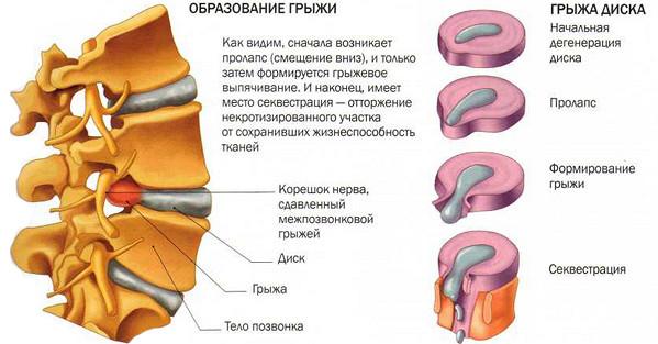 Лечение грыжи в спине лазером 5 противопоказаний и виды операции