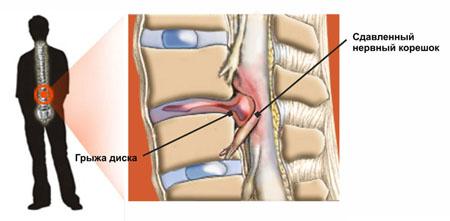 3 причины шума в ушах или в голове при остеохондрозе шеи. Как лечить?