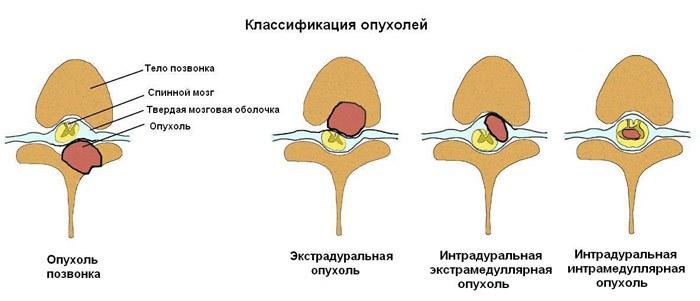 8 признаков рака позвоночника (в том числе боль). Никто не застрахован.