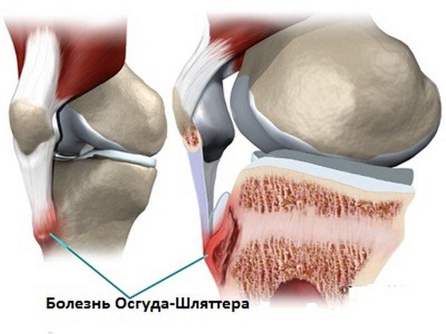 21 причина боли в голени. Связь с болезнями