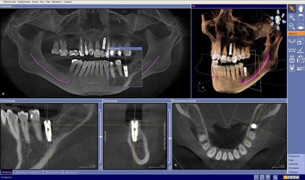 Формирование положения зубных коронок