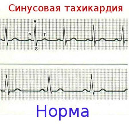 Механизм действия Валокордина, повышает или понижает давление у людей, у которых есть с ним проблемы?