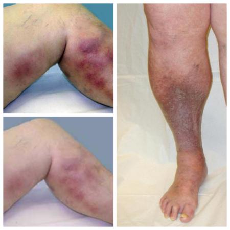 Особенности применения Фуросемида при высоком артериальном давлении, клиническая эффективность, противопоказания