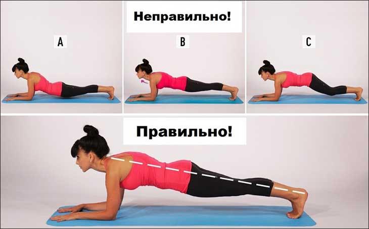 Упражнение планка при грыже позвоночника: можно ли делать, как правильно?