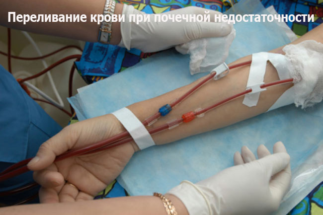 Переливание крови при почечной недостаточности