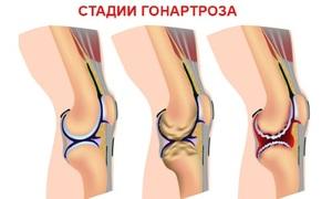 Гоноартроз коленного сустава
