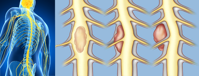 Рак спинного мозга 13 симптомов на начальной и поздней стадии, прогноз жизни.